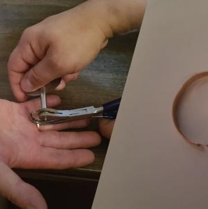 Obrączka na opuchniętym palcu